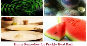 prickly heat rash
